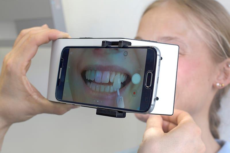 Bestimmung der Zahnfarbe